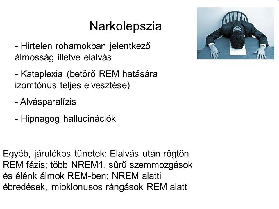 Narkolepszia - Hirtelen rohamokban jelentkező álmosság illetve elalvás - Kataplexia (betörő REM hatására izomtónus teljes elvesztése) - Alvásparalízis - Hipnagog hallucinációk Egyéb, járulékos tünetek: Elalvás után rögtön REM fázis; több NREM1, sűrű szemmozgások és élénk álmok REM-ben; NREM alatti ébredések, mioklonusos rángások REM alatt
