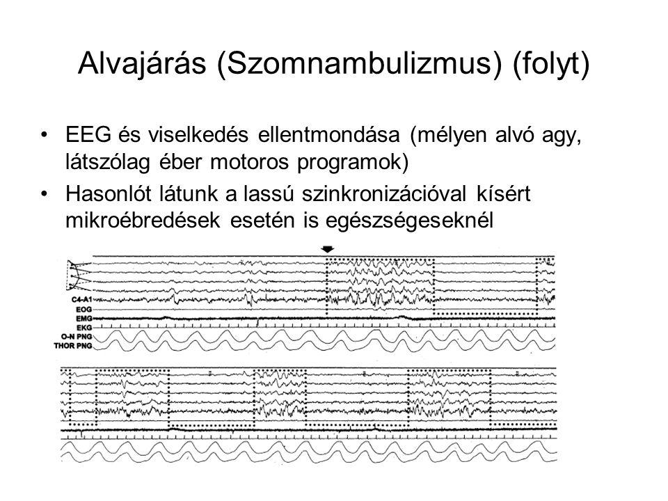 Alvajárás (Szomnambulizmus) (folyt) EEG és viselkedés ellentmondása (mélyen alvó agy, látszólag éber motoros programok) Hasonlót látunk a lassú szinkronizációval kísért mikroébredések esetén is egészségeseknél