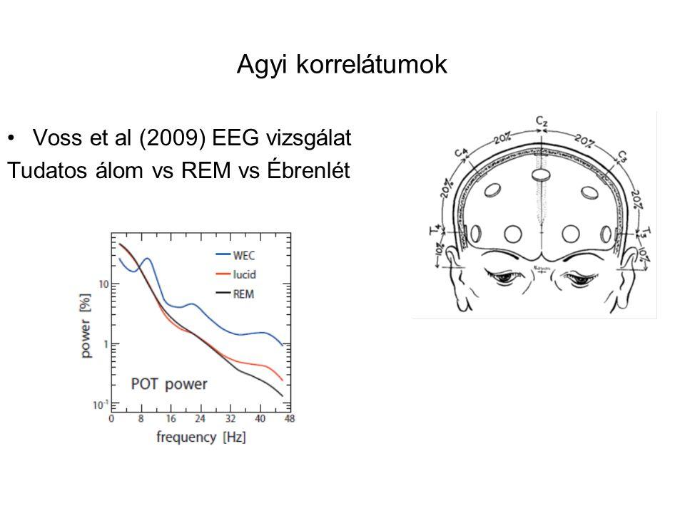 Agyi korrelátumok Voss et al (2009) EEG vizsgálat Tudatos álom vs REM vs Ébrenlét
