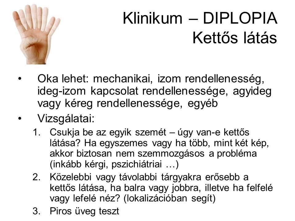 Klinikum – DIPLOPIA Kettős látás Oka lehet: mechanikai, izom rendellenesség, ideg-izom kapcsolat rendellenessége, agyideg vagy kéreg rendellenessége,