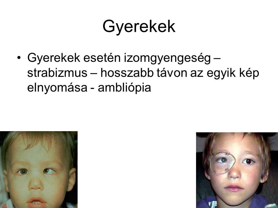 Gyerekek Gyerekek esetén izomgyengeség – strabizmus – hosszabb távon az egyik kép elnyomása - ambliópia