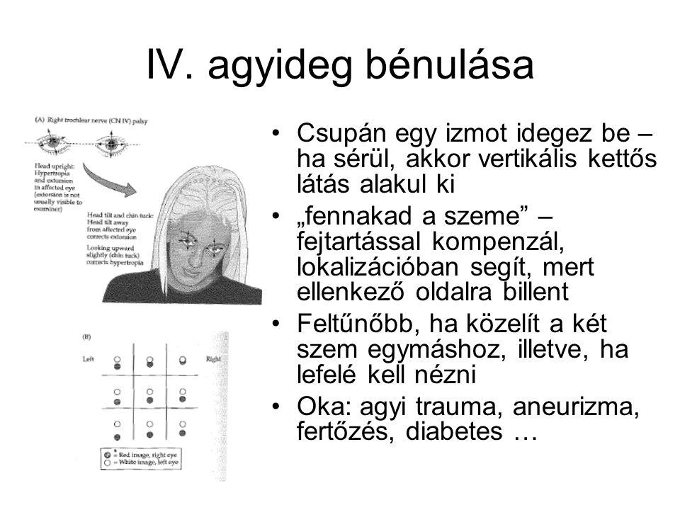 """IV. agyideg bénulása Csupán egy izmot idegez be – ha sérül, akkor vertikális kettős látás alakul ki """"fennakad a szeme"""" – fejtartással kompenzál, lokal"""