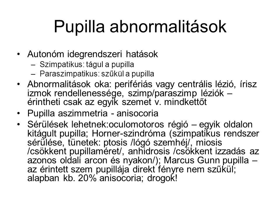Pupilla abnormalitások Autonóm idegrendszeri hatások –Szimpatikus: tágul a pupilla –Paraszimpatikus: szűkül a pupilla Abnormalitások oka: perifériás v
