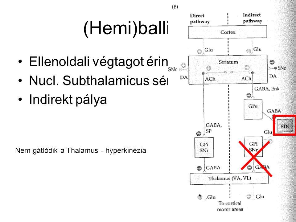 (Hemi)ballizmus Ellenoldali végtagot érint Nucl.