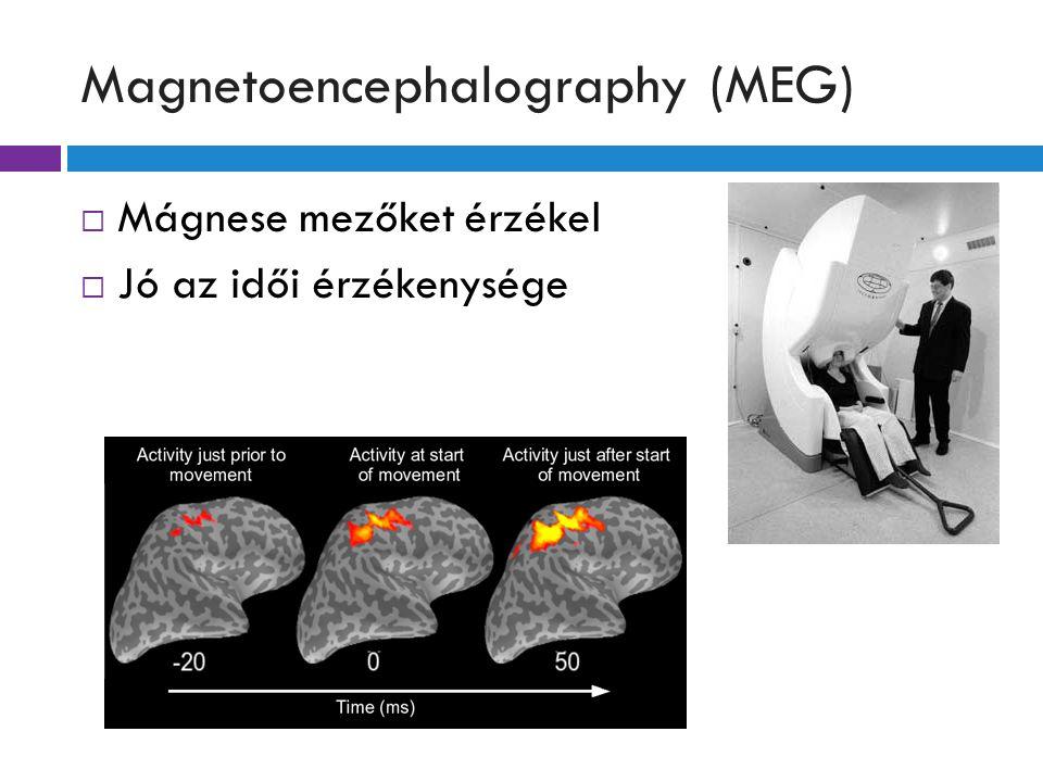 Magnetoencephalography (MEG)  Mágnese mezőket érzékel  Jó az idői érzékenysége