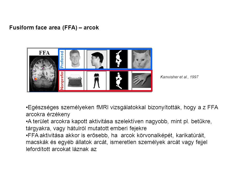 FFA Preferred Nonprefer. Kanwisher et al., 1997 Fusiform face area (FFA) – arcok Egészséges személyeken fMRI vizsgálatokkal bizonyították, hogy a z FF