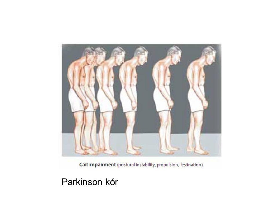 Parkinson kór