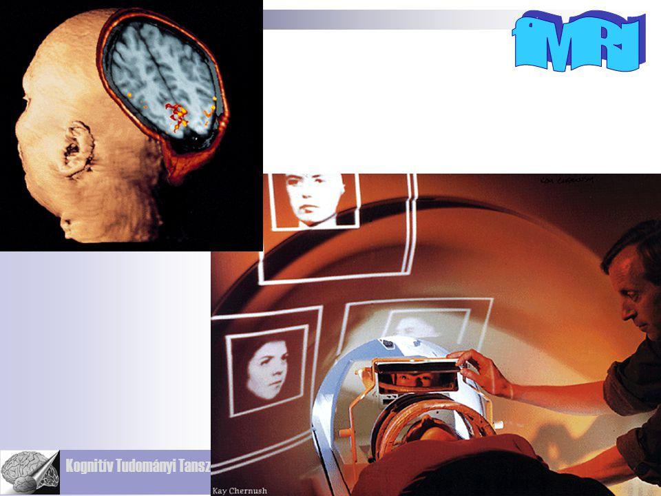 Kognitív Tudományi Tanszék Budapesti Műszaki és Gazdaságtudományi Egyetem ALAPJA: MRI: A protonok mágneses térben képesek elektromágneses energiát bef