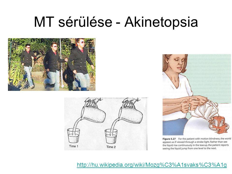 MT sérülése - Akinetopsia http://hu.wikipedia.org/wiki/Mozg%C3%A1svaks%C3%A1g