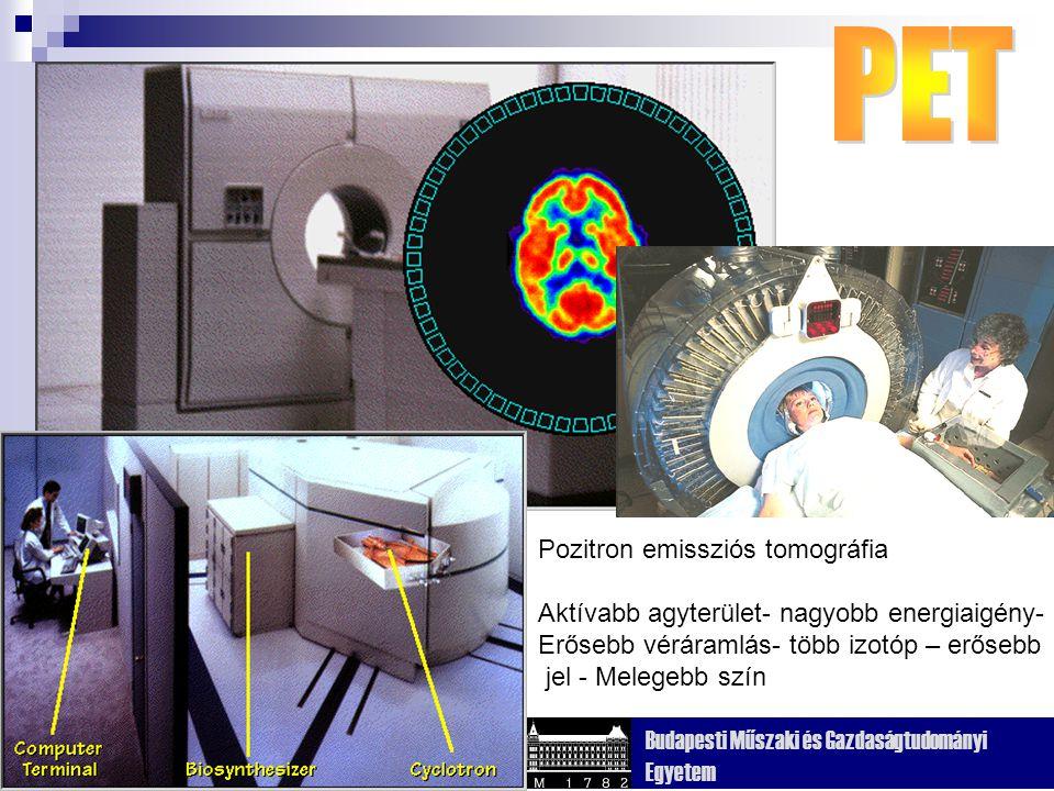 Kognitív Tudományi Tanszék Budapesti Műszaki és Gazdaságtudományi Egyetem Röntgen sugárzás különböző szövetek - különböző elnyeléssel Körben elhelyezett detektorok Fényérzékeny film Keresztmetszeti kép Struktúrát mutat csont folyadék agyszövet