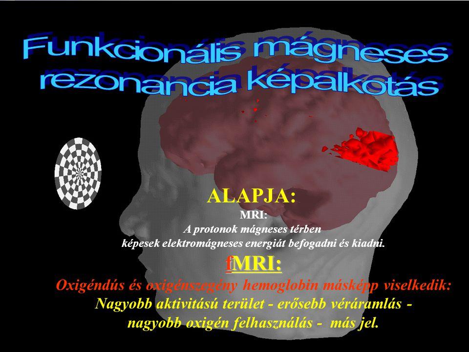 Kognitív Tudományi Tanszék Budapesti Műszaki és Gazdaságtudományi Egyetem Alapelv Stabil mágneses mező Rádiófrekvenciás jel be- majd kikapcsolása Hidrogén ionok (protonok) eloszlásának és mozgásának feltérképezése