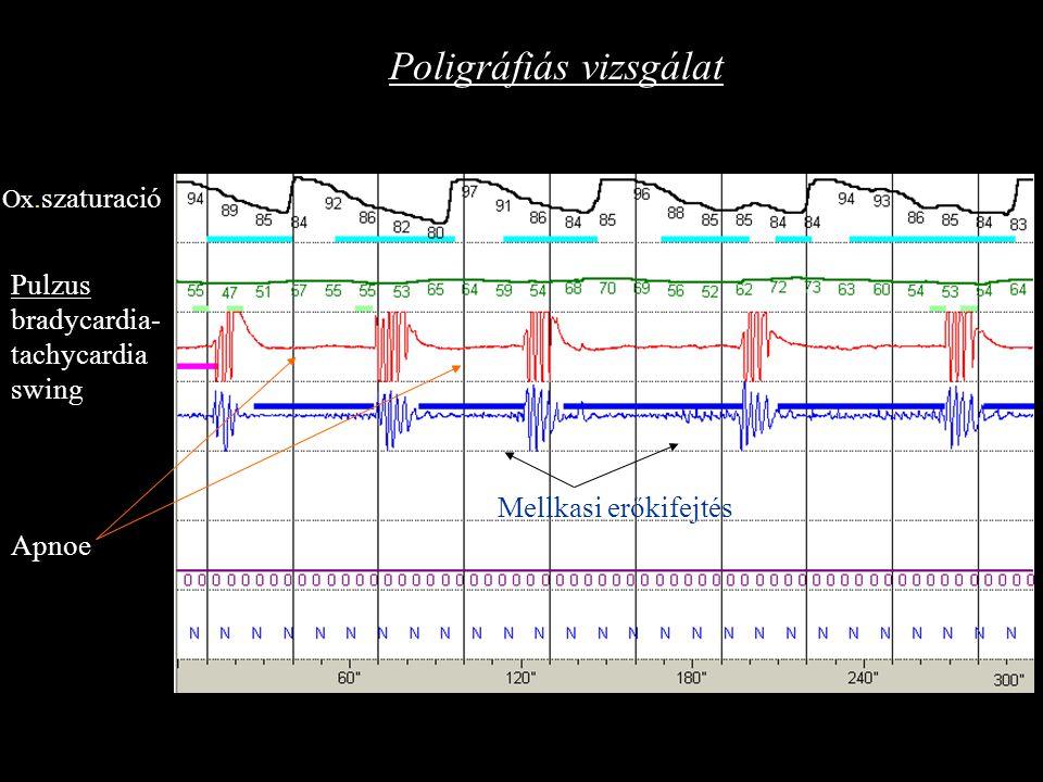 Poligráfiás vizsgálat Ox.szaturació Pulzus bradycardia- tachycardia swing Apnoe Mellkasi erőkifejtés