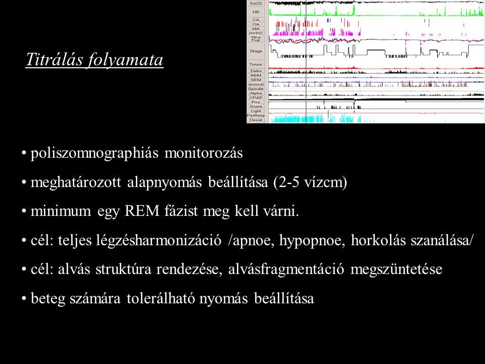 Titrálás folyamata poliszomnographiás monitorozás meghatározott alapnyomás beállítása (2-5 vízcm) minimum egy REM fázist meg kell várni. cél: teljes l