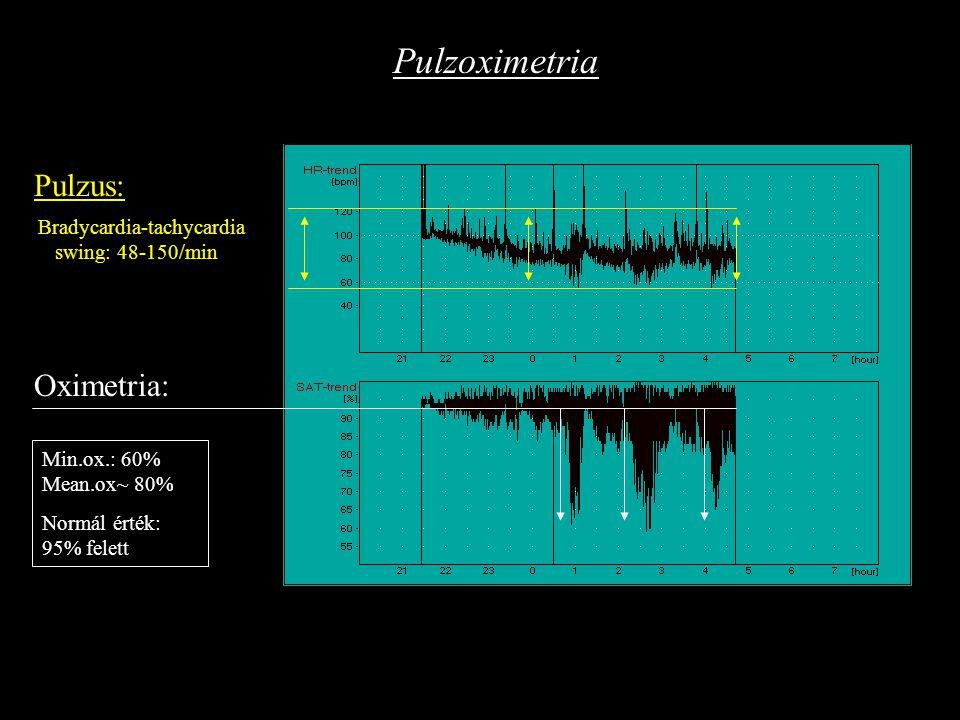 Előszűrés II.: Célja: az alvásfüggő légzészavar diagnózisának felállítása Helye: alváslaboratórium, kórházi osztály (belgyógyászati, neurológiai) Eszközei: Pulzoximetria Kardiorespiratórikus poligráfia Oximetriás trend Pulzus trend OSAS gyanú megerősítése Oxigén szaturáció Pulzus Légzési effort Levegőáramlás Mikrofon Testpozíció RDI= AHI (apnoe/hypopnoe index) Min.