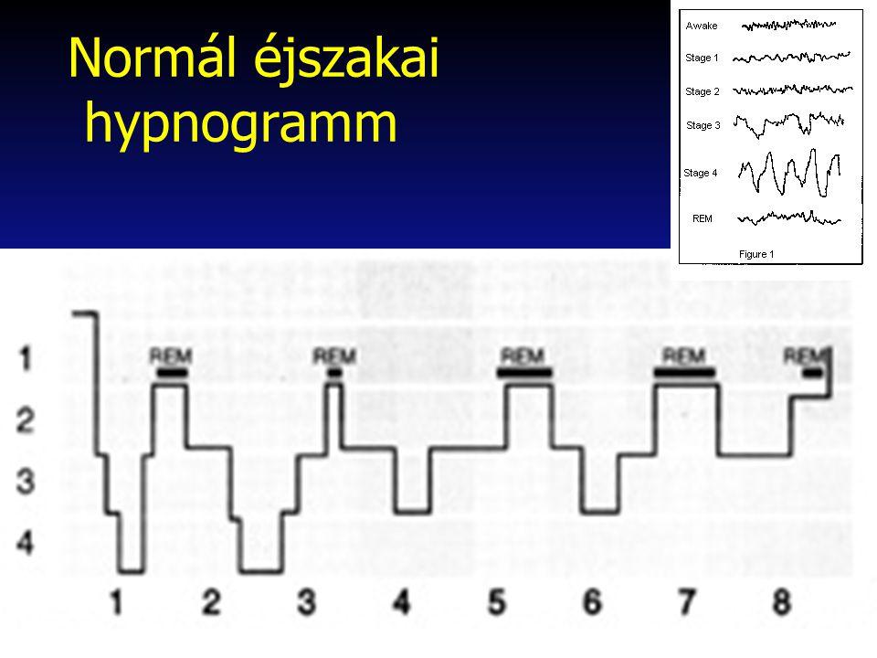 Alvásközeli (hypnagog/hypnopomp) hallucinatiok Alvás-ébrenlét határán visualis vagy multimodalis valódi hallucinációk Pszichózistól, valós élményektől elkülöníteni nehéz lehet