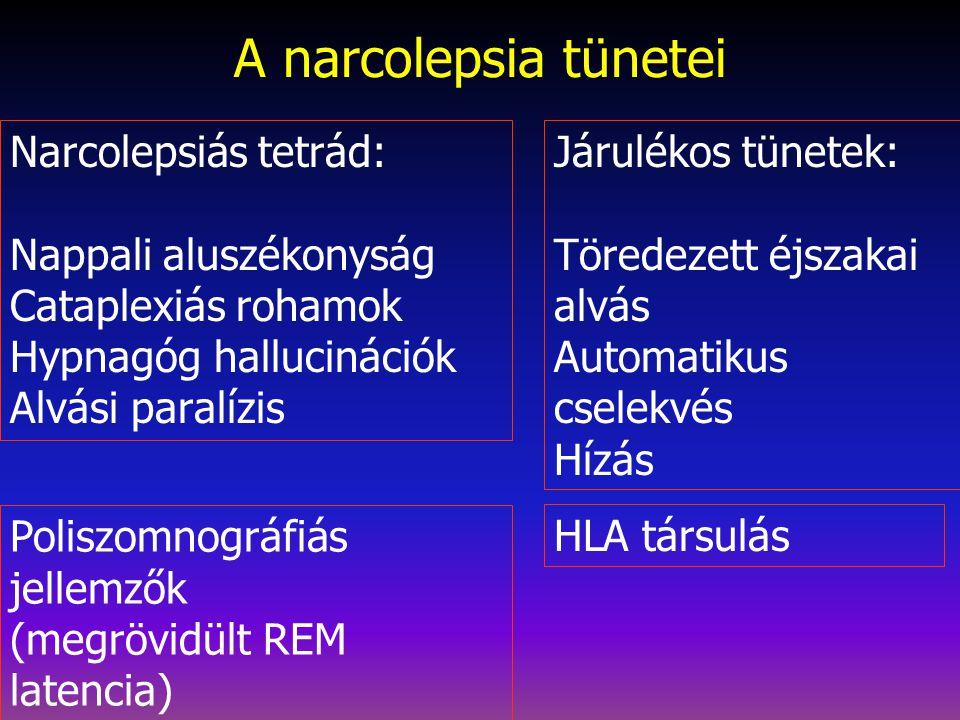 A narcolepsia tünetei Narcolepsiás tetrád: Nappali aluszékonyság Cataplexiás rohamok Hypnagóg hallucinációk Alvási paralízis Járulékos tünetek: Töredezett éjszakai alvás Automatikus cselekvés Hízás Poliszomnográfiás jellemzők (megrövidült REM latencia) HLA társulás