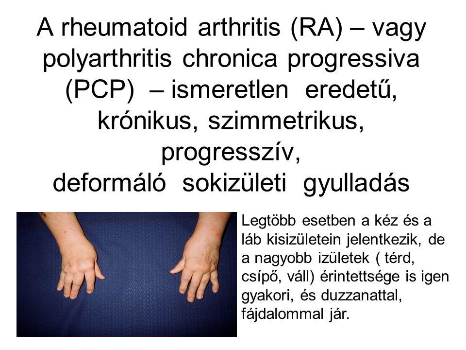 A rheumatoid arthritis (RA) – vagy polyarthritis chronica progressiva (PCP) – ismeretlen eredetű, krónikus, szimmetrikus, progresszív, deformáló sokizületi gyulladás Legtöbb esetben a kéz és a láb kisizületein jelentkezik, de a nagyobb izületek ( térd, csípő, váll) érintettsége is igen gyakori, és duzzanattal, fájdalommal jár.