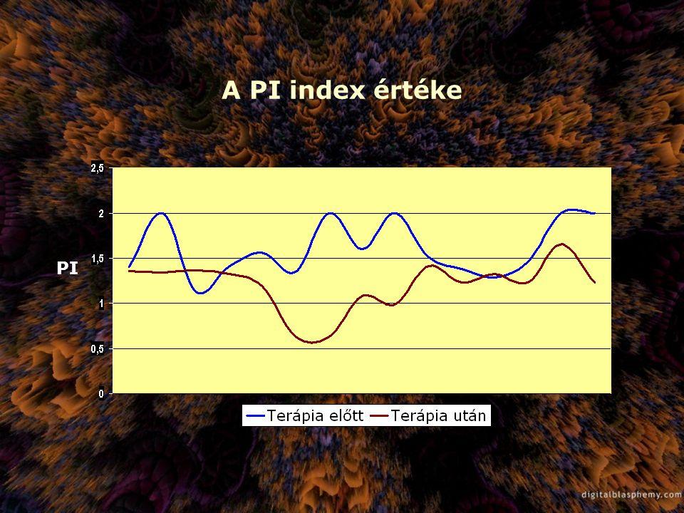 A PI index értéke PI