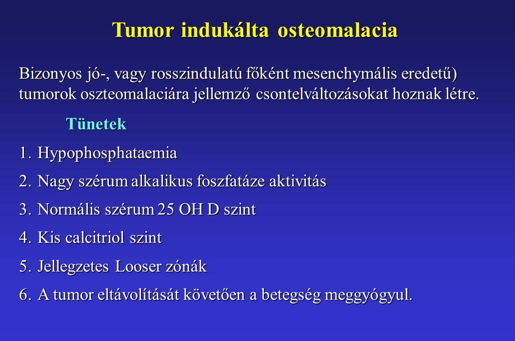 Tumor indukálta osteomalacia Bizonyos jó-, vagy rosszindulatú főként mesenchymális eredetű) tumorok oszteomalaciára jellemző csontelváltozásokat hozna