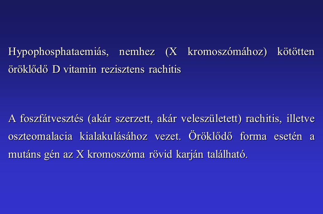 Hypophosphataemiás, nemhez (X kromoszómához) kötötten öröklődő D vitamin rezisztens rachitis A foszfátvesztés (akár szerzett, akár veleszületett) rach