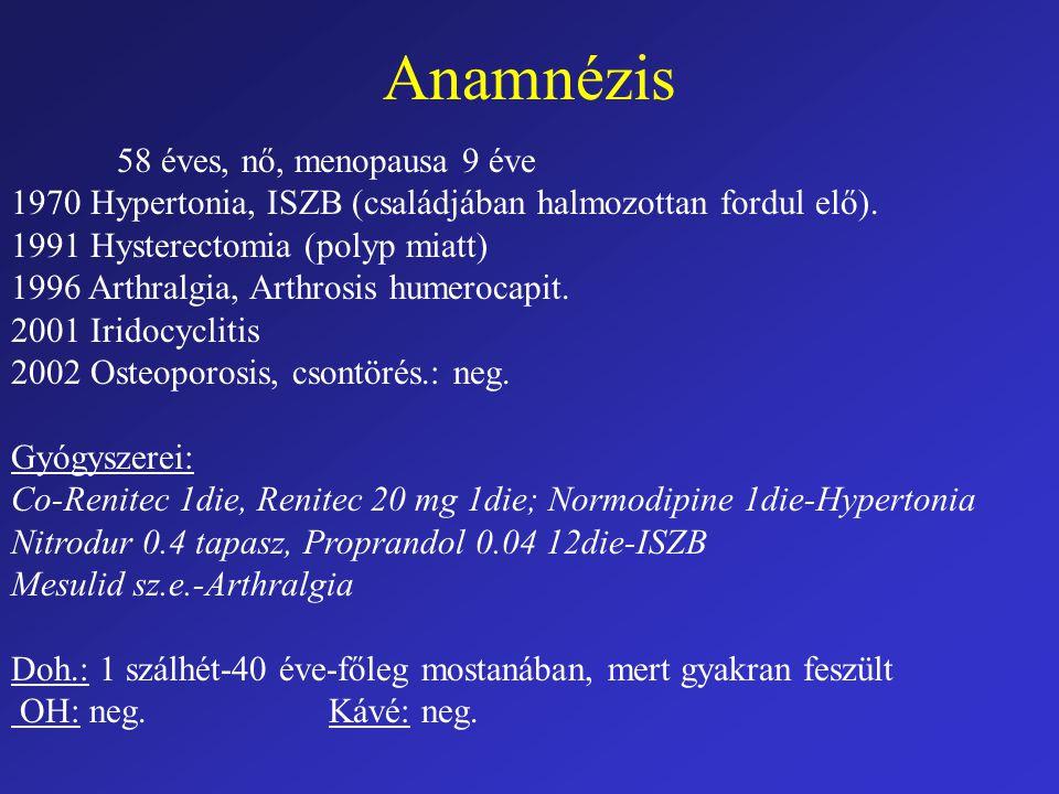 Anamnézis 58 éves, nő, menopausa 9 éve 1970 Hypertonia, ISZB (családjában halmozottan fordul elő). 1991 Hysterectomia (polyp miatt) 1996 Arthralgia, A