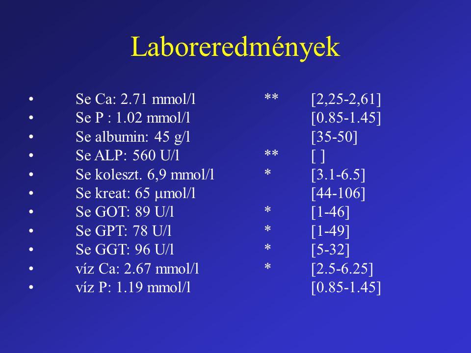 Laboreredmények Se Ca: 2.71 mmol/l**[2,25-2,61] Se P : 1.02 mmol/l[0.85-1.45] Se albumin: 45 g/l[35-50] Se ALP: 560 U/l**[ ] Se koleszt. 6,9 mmol/l*[3