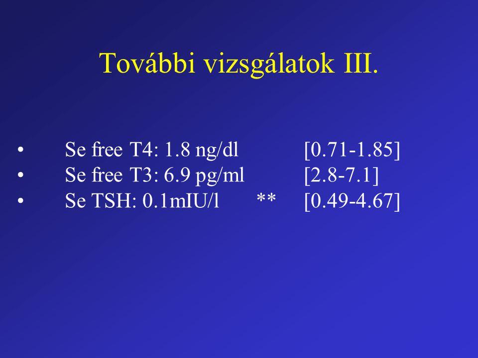További vizsgálatok III. Se free T4: 1.8 ng/dl[0.71-1.85] Se free T3: 6.9 pg/ml[2.8-7.1] Se TSH: 0.1mIU/l**[0.49-4.67]