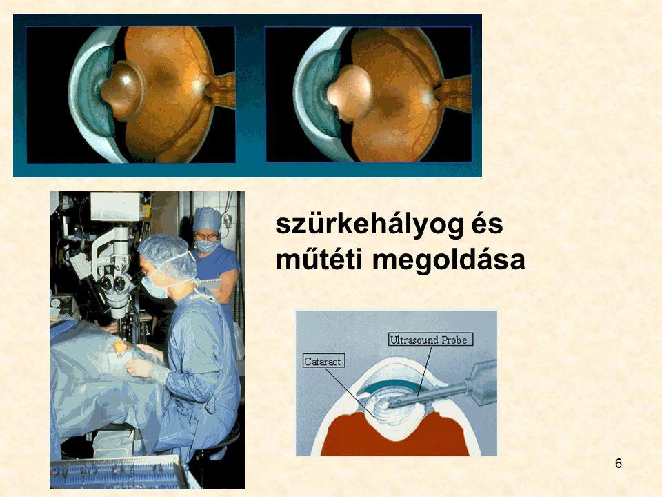 6 szürkehályog és műtéti megoldása
