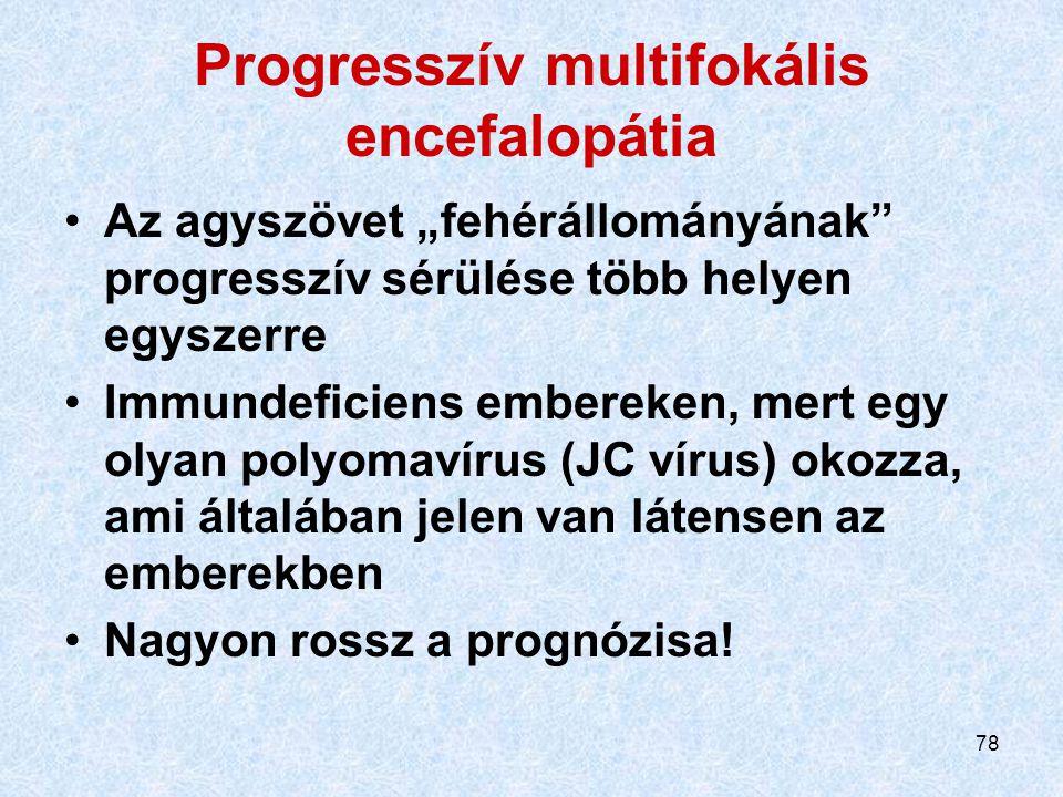 """78 Progresszív multifokális encefalopátia Az agyszövet """"fehérállományának"""" progresszív sérülése több helyen egyszerre Immundeficiens embereken, mert e"""