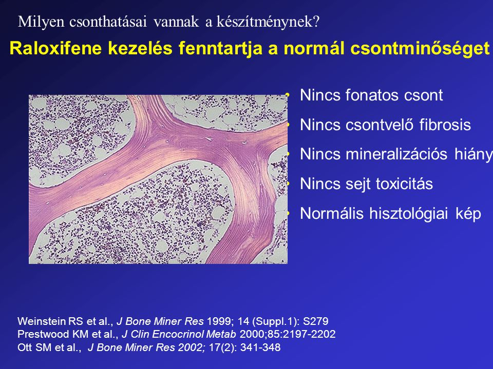 Nincs fonatos csont Nincs csontvelő fibrosis Nincs mineralizációs hiány Nincs sejt toxicitás Normális hisztológiai kép Raloxifene kezelés fenntartja a normál csontminőséget Weinstein RS et al., J Bone Miner Res 1999; 14 (Suppl.1): S279 Prestwood KM et al., J Clin Encocrinol Metab 2000;85:2197-2202 Ott SM et al., J Bone Miner Res 2002; 17(2): 341-348 Milyen csonthatásai vannak a készítménynek