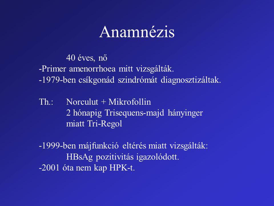 Anamnézis 40 éves, nő -Primer amenorrhoea mitt vizsgálták.