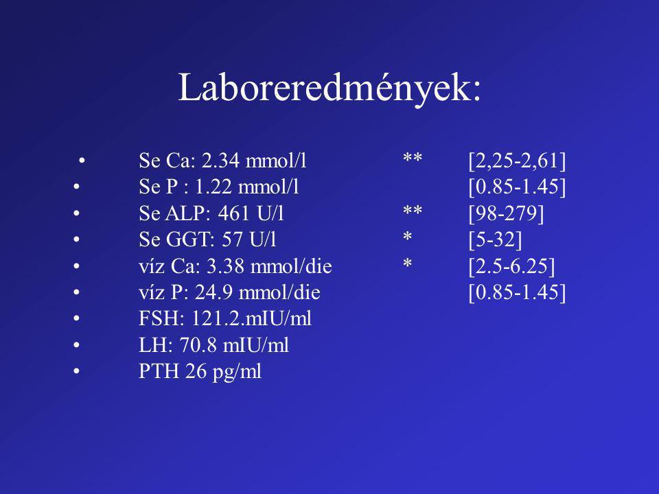 Laboreredmények: Se Ca: 2.34 mmol/l**[2,25-2,61] Se P : 1.22 mmol/l[0.85-1.45] Se ALP: 461 U/l**[98-279] Se GGT: 57 U/l *[5-32] víz Ca: 3.38 mmol/die*[2.5-6.25] víz P: 24.9 mmol/die[0.85-1.45] FSH: 121.2.mIU/ml LH: 70.8 mIU/ml PTH 26 pg/ml