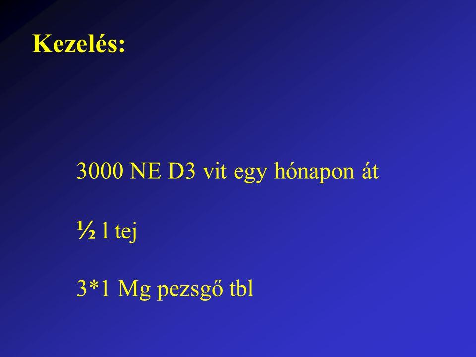 Kezelés: 3000 NE D3 vit egy hónapon át ½ l tej 3*1 Mg pezsgő tbl