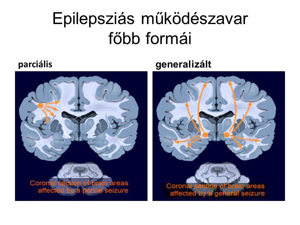 Epilepsziás működészavar főbb formái parciális generalizált