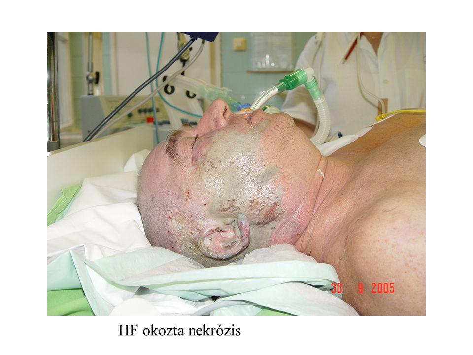 HF okozta nekrózis