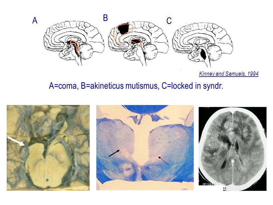 A A=coma, B=akineticus mutismus, C=locked in syndr. Kinney and Samuels, 1994 B C