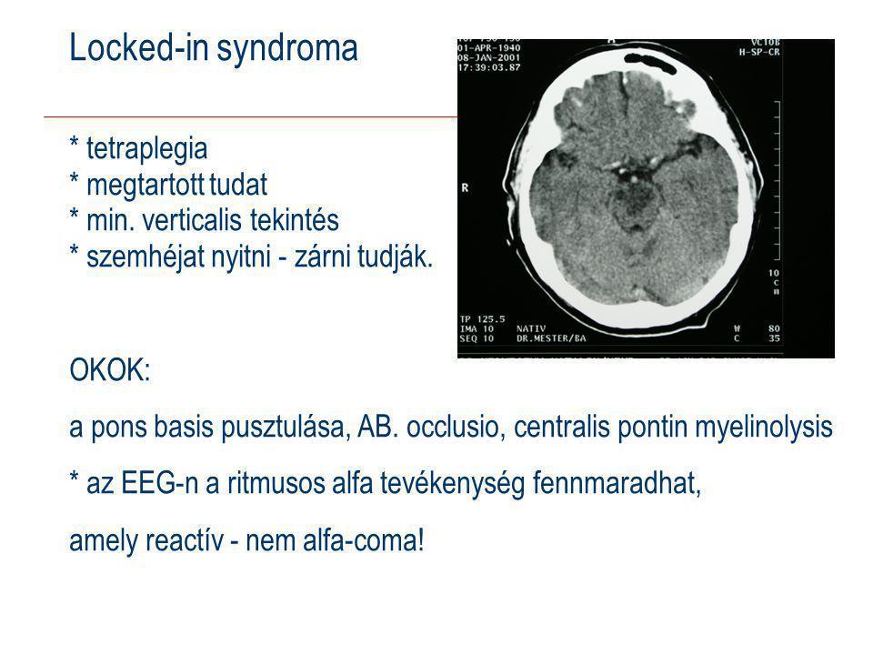 Locked-in syndroma * tetraplegia * megtartott tudat * min.