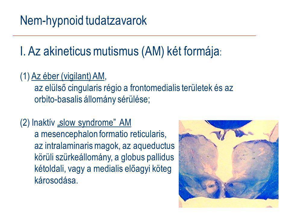 Nem-hypnoid tudatzavarok I.
