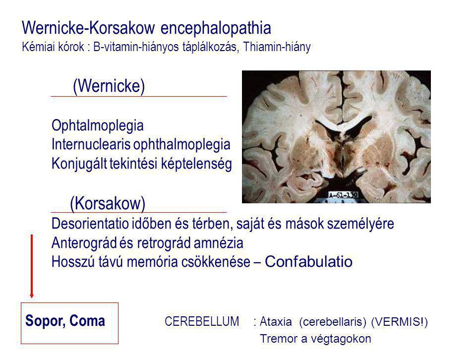 Wernicke-Korsakow encephalopathia Kémiai kórok : B-vitamin-hiányos táplálkozás, Thiamin-hiány (Wernicke) Ophtalmoplegia Internuclearis ophthalmoplegia Konjugált tekintési képtelenség (Korsakow) Desorientatio időben és térben, saját és mások személyére Anterográd és retrográd amnézia Hosszú távú memória csökkenése – Confabulatio Sopor, Coma CEREBELLUM : A taxia (cerebellaris) (VERMIS!) Tremor a végtagokon