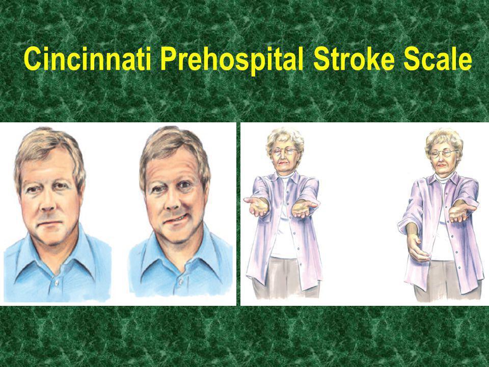 Cincinnati Prehospital Stroke Scale