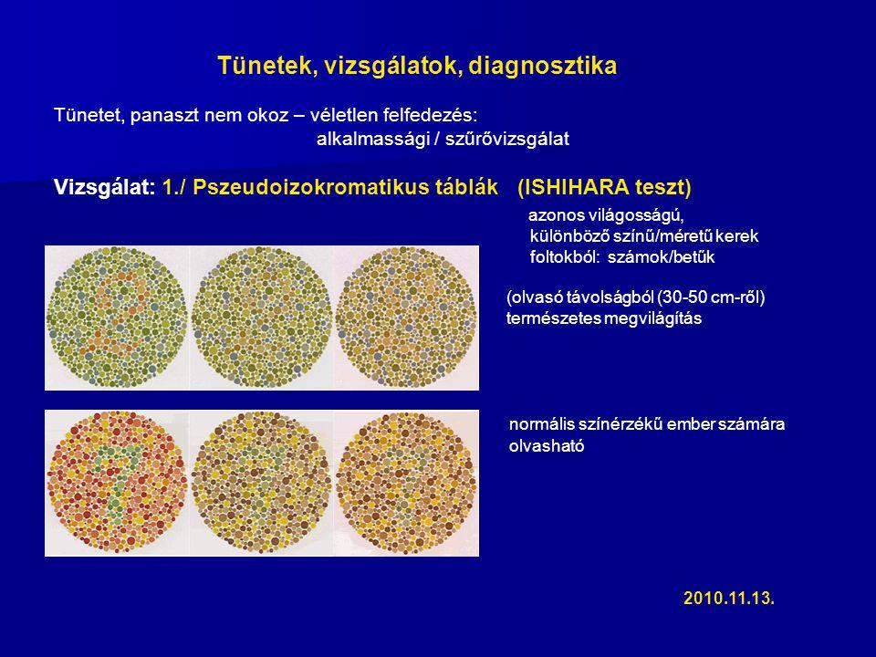 Tünetek, vizsgálatok, diagnosztika Tünetet, panaszt nem okoz – véletlen felfedezés: alkalmassági / szűrővizsgálat Vizsgálat: 1./ Pszeudoizokromatikus táblák (ISHIHARA teszt) azonos világosságú, különböző színű/méretű kerek foltokból: számok/betűk (olvasó távolságból (30-50 cm-ről) természetes megvilágítás normális színérzékű ember számára olvasható 2010.11.13.