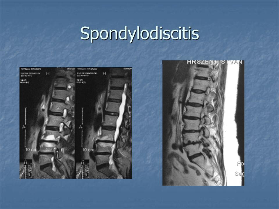 Spondylodiscitis