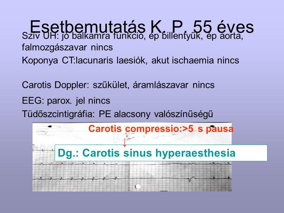Esetbemutatás K. P. 55 éves Koponya CT:lacunaris laesiók, akut ischaemia nincs Carotis Doppler: szűkület, áramlászavar nincs Dg.: Carotis sinus hypera