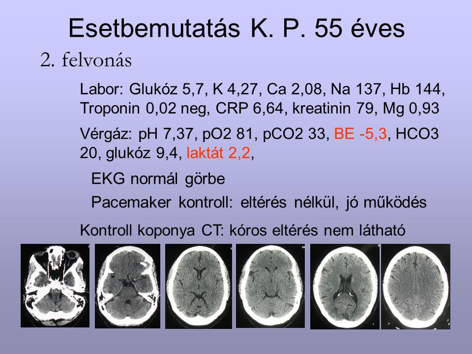 Esetbemutatás K. P. 55 éves EKG normál görbe Pacemaker kontroll: eltérés nélkül, jó működés 2. felvonás Labor: Glukóz 5,7, K 4,27, Ca 2,08, Na 137, Hb