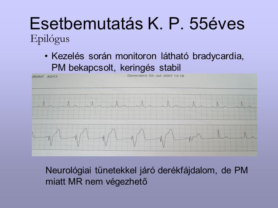 Esetbemutatás K. P. 55éves Kezelés során monitoron látható bradycardia, PM bekapcsolt, keringés stabil Epilógus Neurológiai tünetekkel járó derékfájda