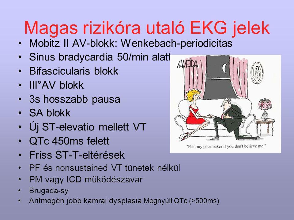 Magas rizikóra utaló EKG jelek Mobitz II AV-blokk: Wenkebach-periodicitas Sinus bradycardia 50/min alatt Bifascicularis blokk III°AV blokk 3s hosszabb