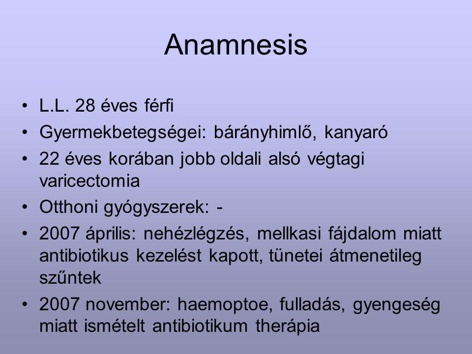 Anamnesis L.L. 28 éves férfi Gyermekbetegségei: bárányhimlő, kanyaró 22 éves korában jobb oldali alsó végtagi varicectomia Otthoni gyógyszerek: - 2007