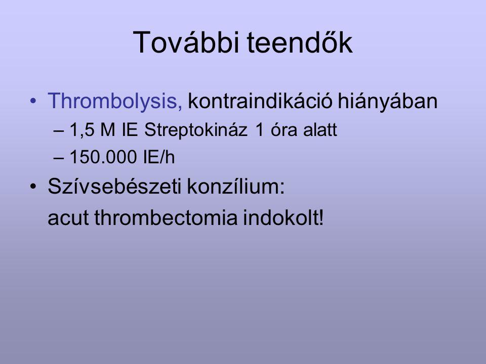 További teendők Thrombolysis, kontraindikáció hiányában –1,5 M IE Streptokináz 1 óra alatt –150.000 IE/h Szívsebészeti konzílium: acut thrombectomia i