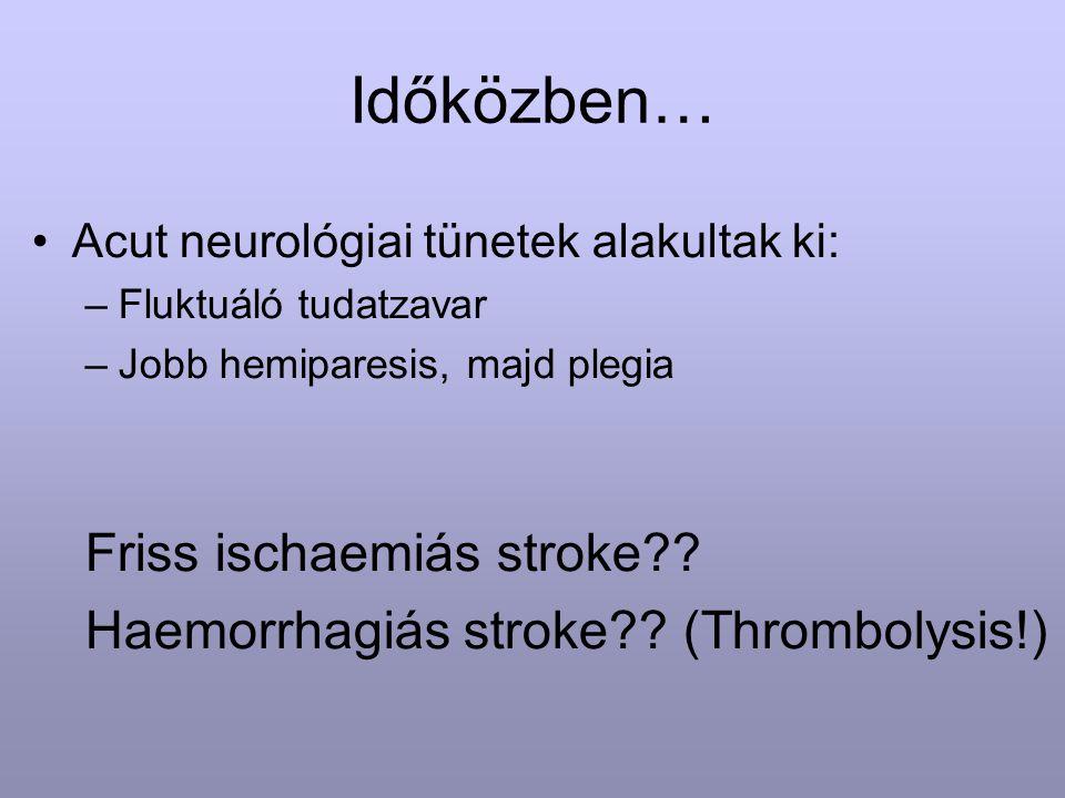 Időközben… Acut neurológiai tünetek alakultak ki: –Fluktuáló tudatzavar –Jobb hemiparesis, majd plegia Friss ischaemiás stroke?? Haemorrhagiás stroke?