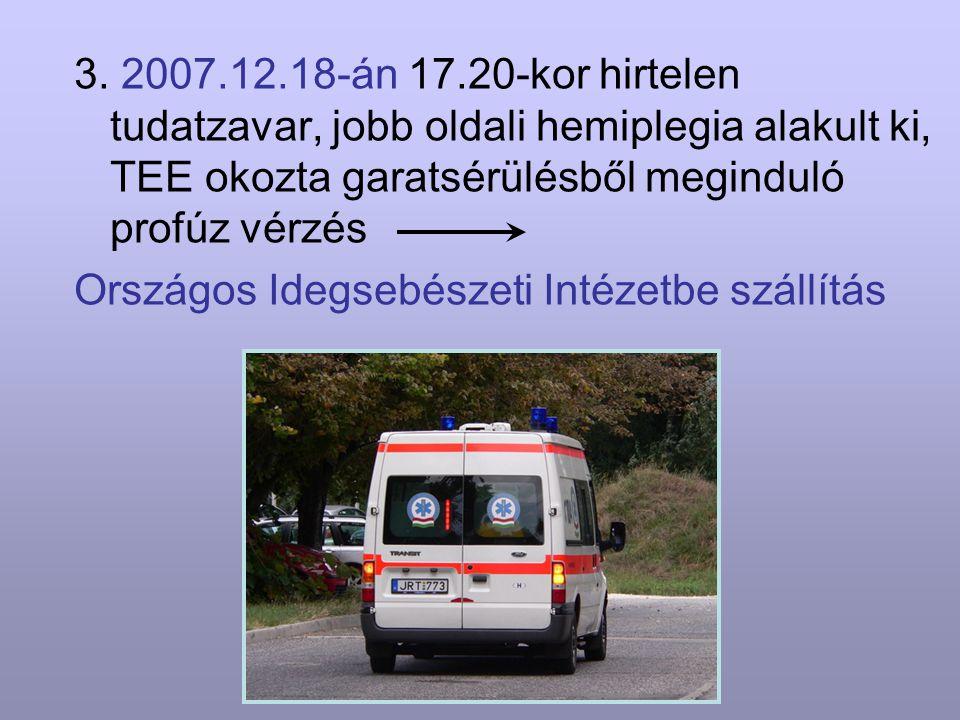 3. 2007.12.18-án 17.20-kor hirtelen tudatzavar, jobb oldali hemiplegia alakult ki, TEE okozta garatsérülésből meginduló profúz vérzés Országos Idegseb